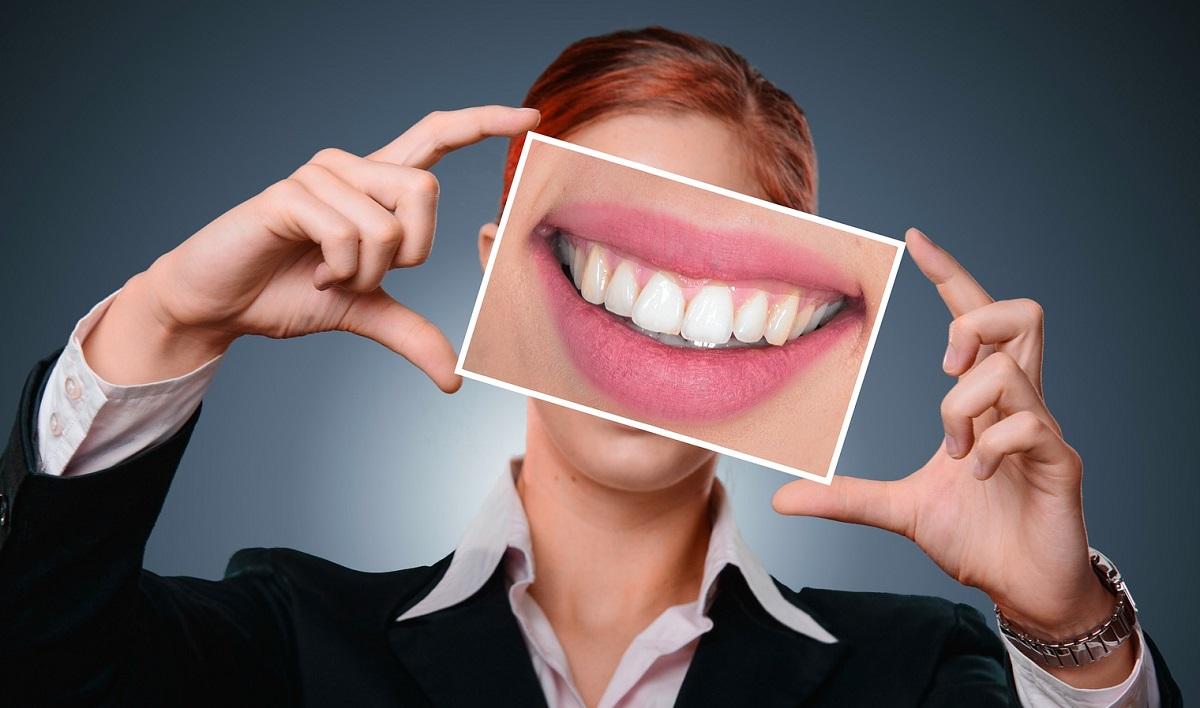 Fațetele dentare, secretul zâmbetului perfect