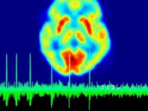 codare-neurala